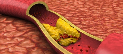 Продукты нормализующие холестерин