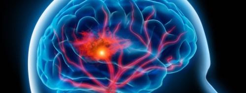 Транзиторная ишемическая атака симптомы, причины