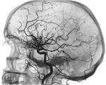 Ангиография при атеросклерозе сосудов мозга