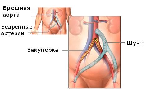 Атеросклероз интракраниальных артерий что это