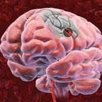 Советы неумывакина по лечению варикоза