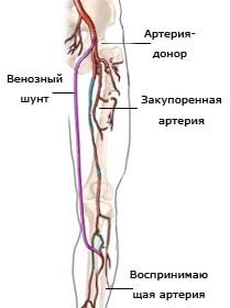 Методы лечения варикозного расширения вен на ногах