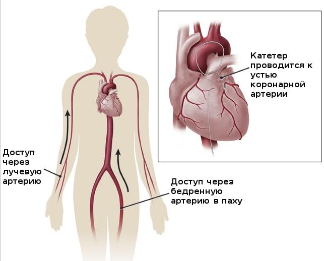 доступ при эндоваскулярном вмешательстве