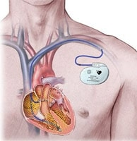 кардиостимуляция