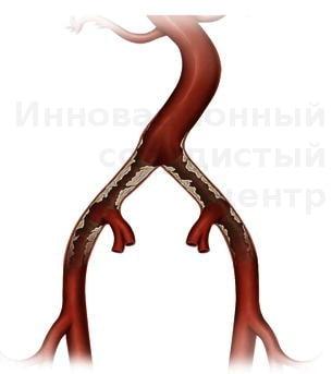 Атеросклероз сосудов ног